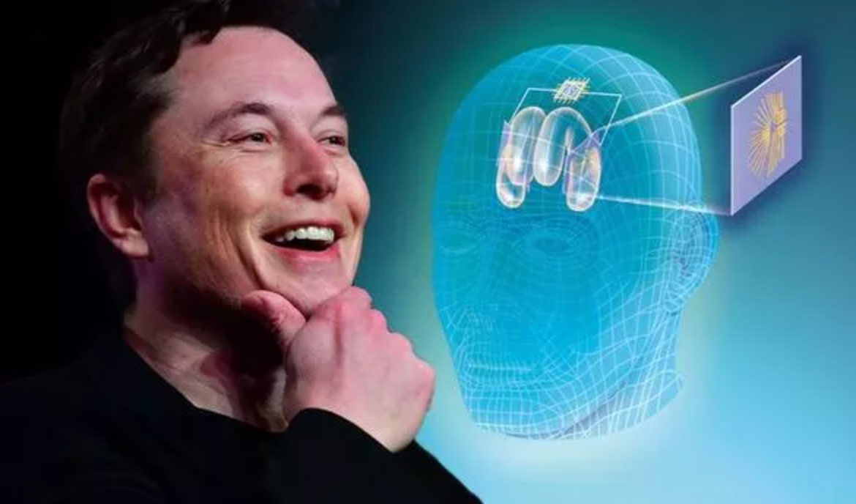 Elon Musk và chip đọc sóng não người