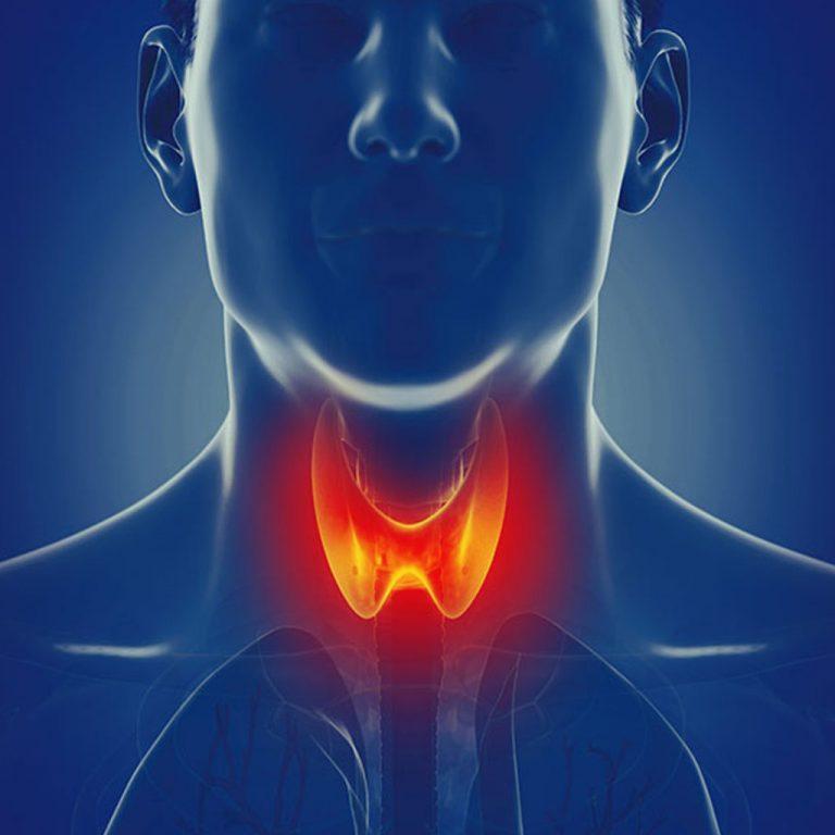 Bệnh Suy Giáp (Hypothyroidism)
