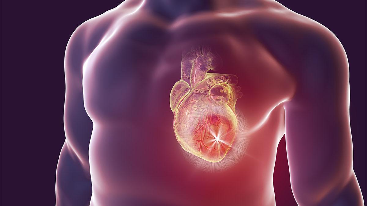 Viêm cơ tim (Myocarditis)